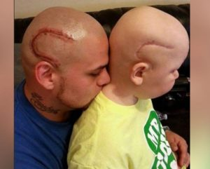 Un padre si è fatto tatuare in testa il segno della cicatrice del figlio Gabriel, operato per un tumore al cervello